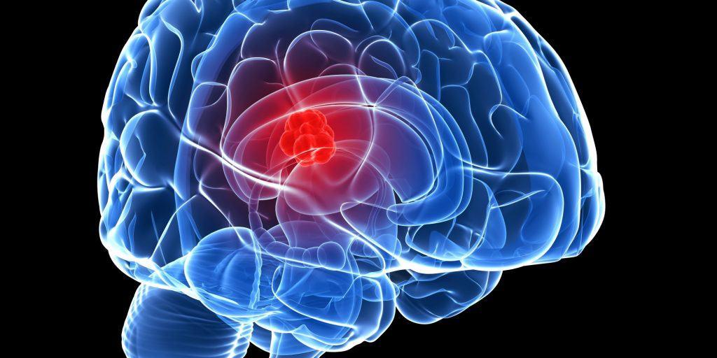 เนื้องอกสมอง